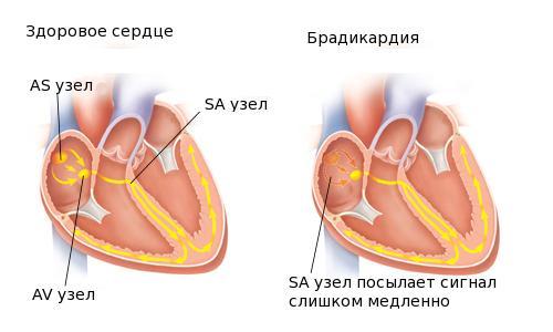 Каковы симптомы и лечение народными средствами брадикардии