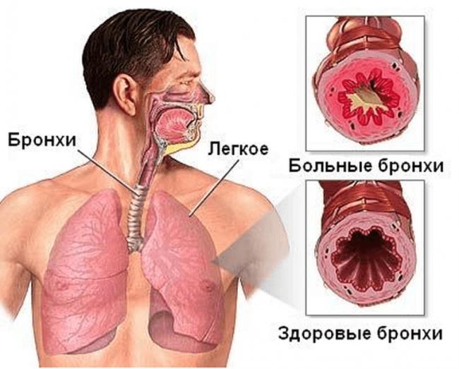 Острый бронхит: лечение 64