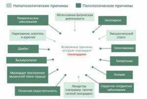 Возможные причины тахикардии
