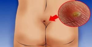Возникновение воспаления в волосяном фолликуле - одна из причин возникновения копчиковой кисты