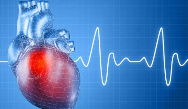 Все пациенты после инфаркта миокарда освобождаются от труда, который может оказать негативное влияние на организм