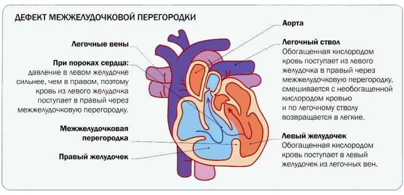 Дефект межжелудочковой перегородки у новорожденного - подробная ...