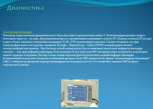Диагностика инфаркта с помощью электрокардиографии