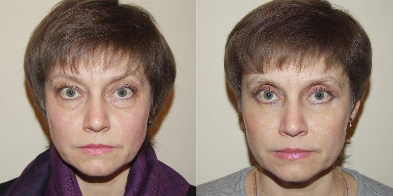 До и после ультразвукового лифтинга