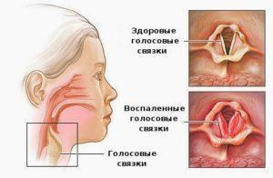 Здоровые и воспаленные голосовые связки