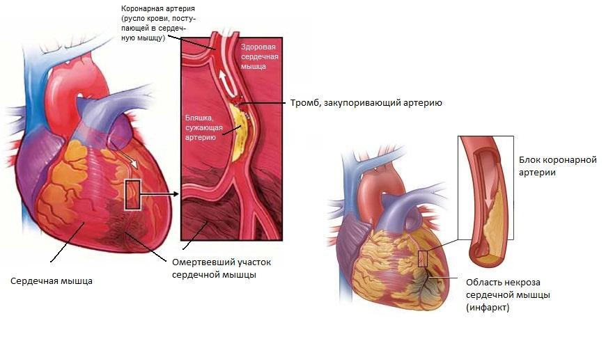 работа миокарда после инфаркта