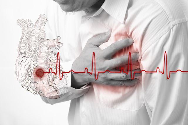 Жизнь после инфаркта - востановление и работа