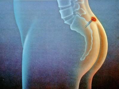 Киста копчика симптомы и лечение