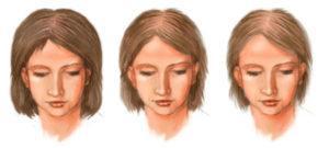 Лечебный шампунь от выпадения волос в аптеке