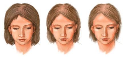 Лечебный шампунь для укрепления и роста волос