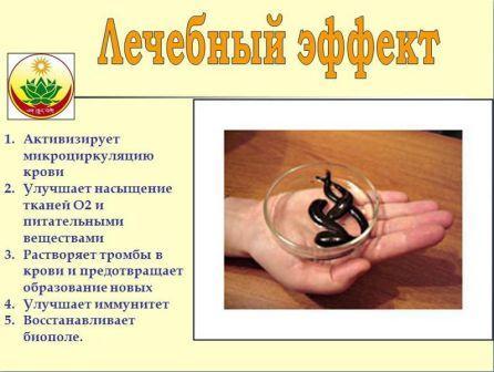 Лечебный эффект гирудотерапии