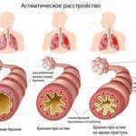 Лечение астмы народными средствами в домашних условиях