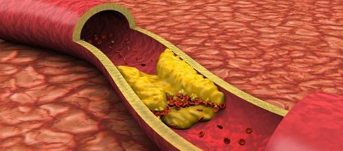 Сужение сосудов головного мозга: симптомы и препараты