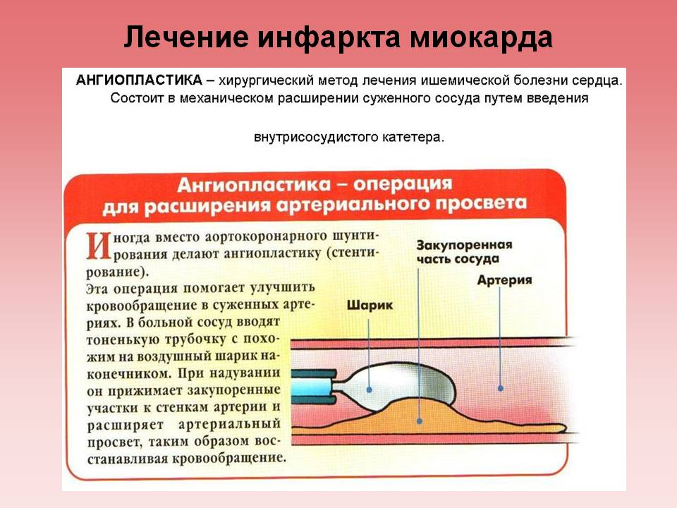 Признаки инфаркта у мужчин: первая помощь - подробная информация