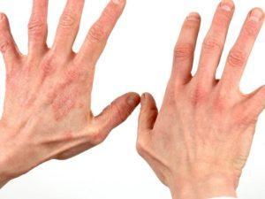 Мазь от дерматита на руках