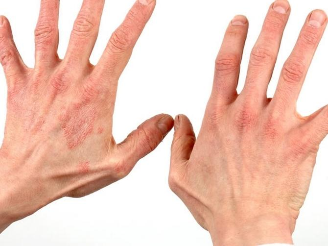 Какая мазь и крем помогут вылечить дерматит