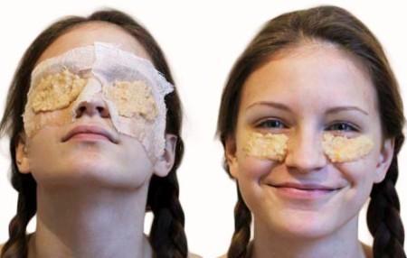 Маски из сырого картофеля осветляют кожу, делают ее более здоровой и сияющей