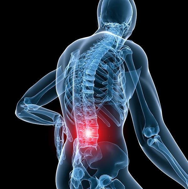 Межпозвоночная грыжа пояснично крестцового отдела позвоночника лечение