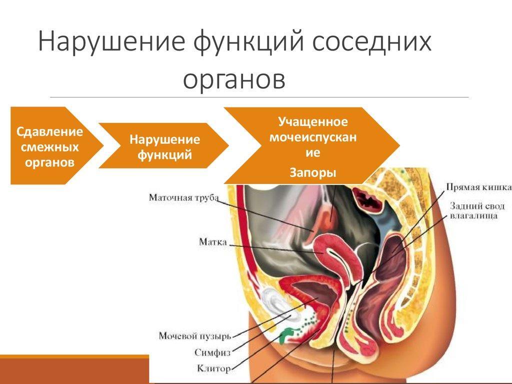 Нарушение функций соседних органов при миоме матки