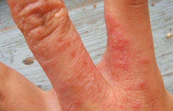 Нейродермит: симптомы, фото и 99