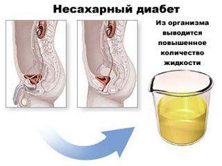 Несахарный диабет симптомы у женщин и лечение