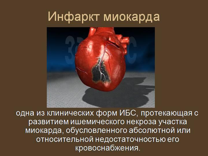 Обширный инфаркт: последствия, шансы выжить