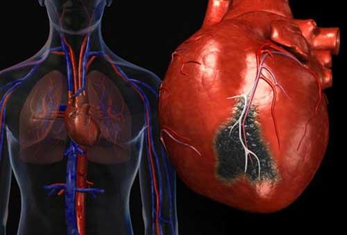 Опыт выживания после инфаркта