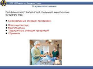 Оперативное лечение фимоза
