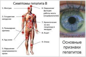 Основные симптомы гепатита В