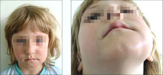 Острый периостит нижней челюсти у детей