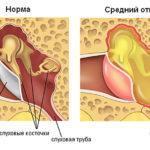 Отит среднего уха: лечение у взрослых