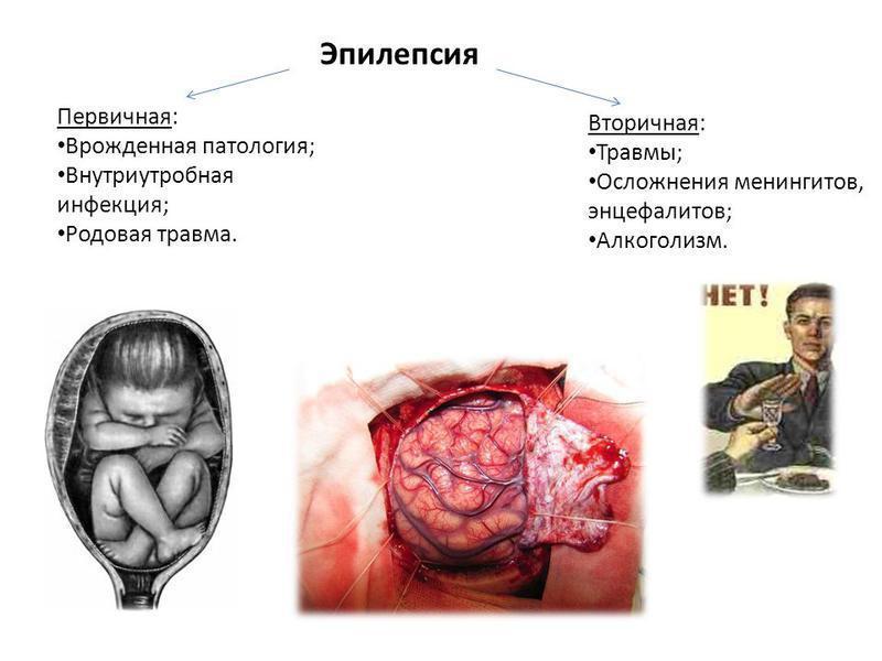 Первичные и вторичные причины эпилепсии