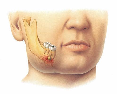 Периостит – это осложнение, которое сопровождает инфекционные заболевания полости рта