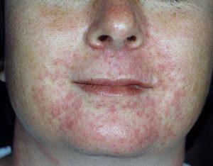 Пероральная форма дерматита