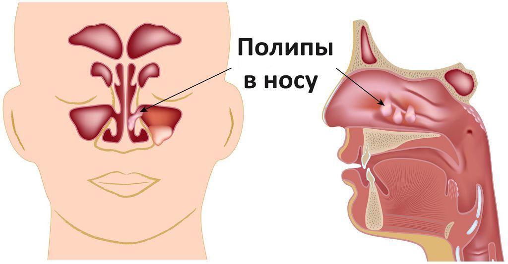 Полипы в носовых пазухах