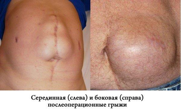 Послеоперационная грыжа брюшной полости: лечение