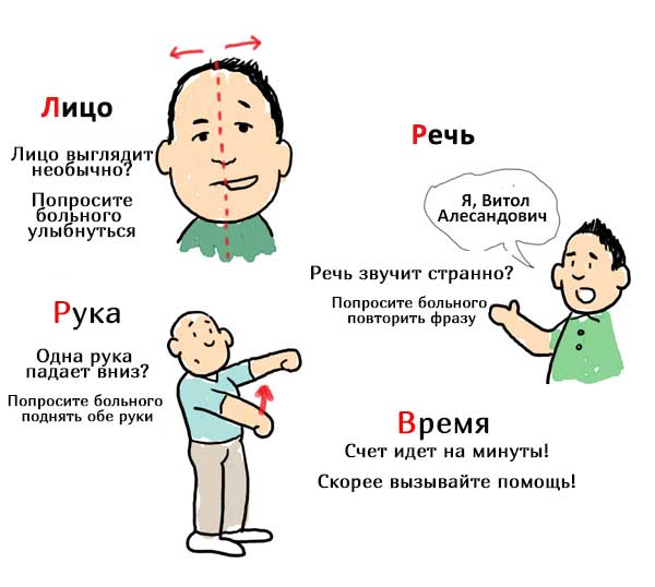Признаки инсульта у мужчин: первая помощь - подробная информация