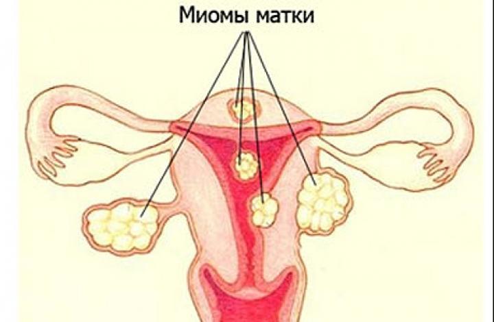 Признаки миомы матки: как распознать