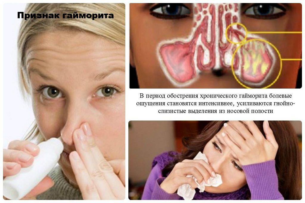Признаки хронического гайморита