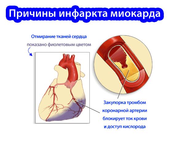 свадьба без как вызвать инфаркт сердца желтухи