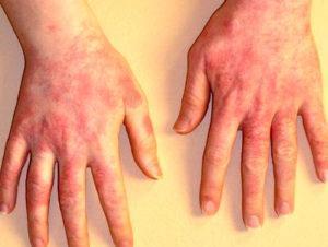 При лечении дерматита на руках воздержитесь от использования косметических средств для рук
