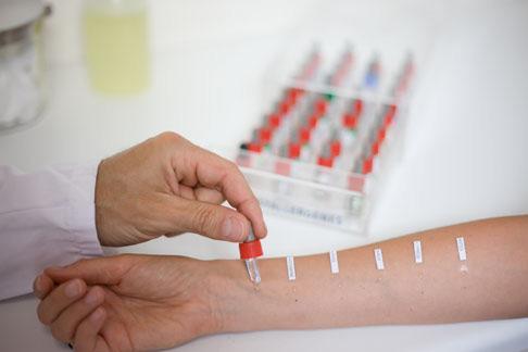 Проведение теста на аллергию
