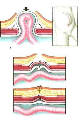 Послеоперационная грыжа: причины и признаки появления, стадии болезни и методы диагностики, хирургическое лечение и послеоперационный период