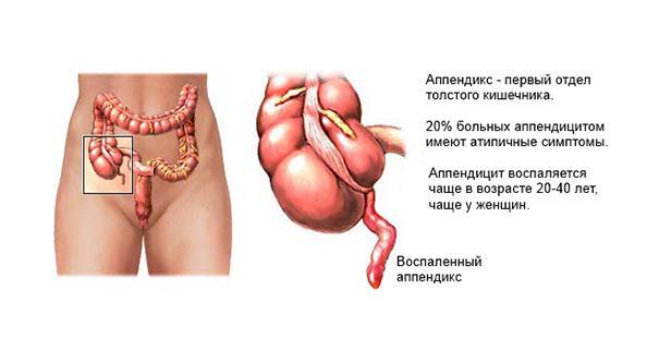 Проявление аппендицита