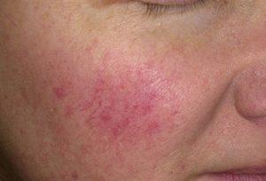 Прыщи на щеках у женщин: причина