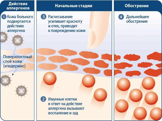 Развитие аллергического дерматита