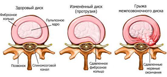 Развитие грыжи межпозвонкового диска