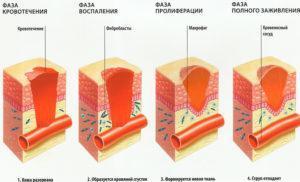 Раны и воспаления на коже - противопоказания к применению содовых процедур