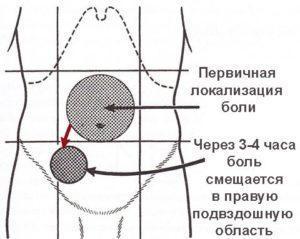 Расположение боли при аппендиците