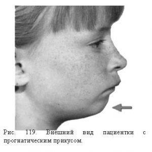 Ребенок с прогнатическим прикусом